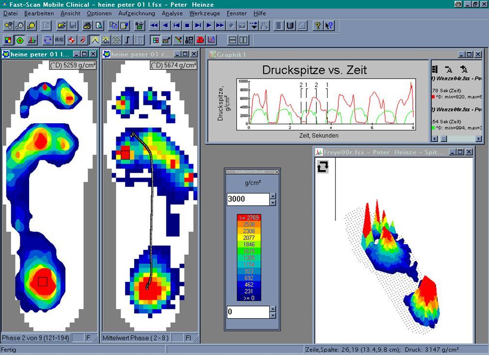 FS-Software Druckverteilung